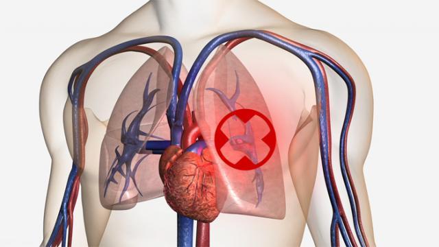 Foto Embolia Polmonare: cause, sintomi e trattamento