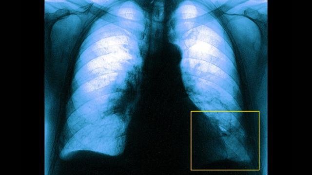 embolia polmone