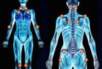 punti trigger fibromialgia