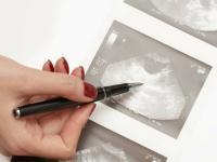 Foto Sintomi di aborto nel Cane
