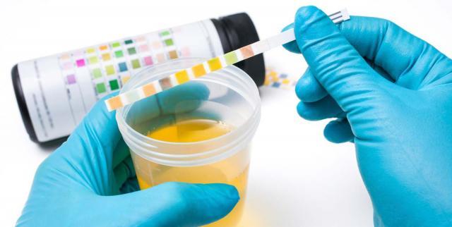 Foto Analisi alle urine nel cane: valori e problemi
