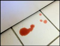 Foto Sangue nelle urine del Gatto: cause e cure
