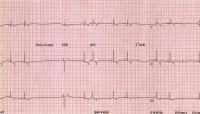 elettrocardiogramma cane
