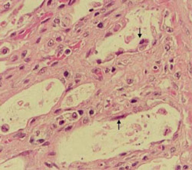 Foto Gastroenterite Infettiva Felina o Panleucopenia  del Gatto e come curarla